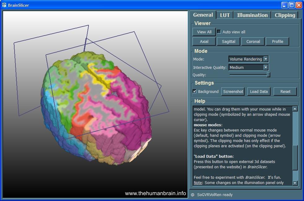 BrainSlicer - teaching.thehumanbrain.info