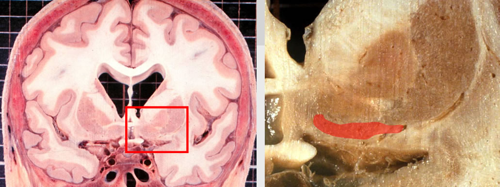 21 Anatomie zentraler Neurotransmitter (NTM)-Systeme