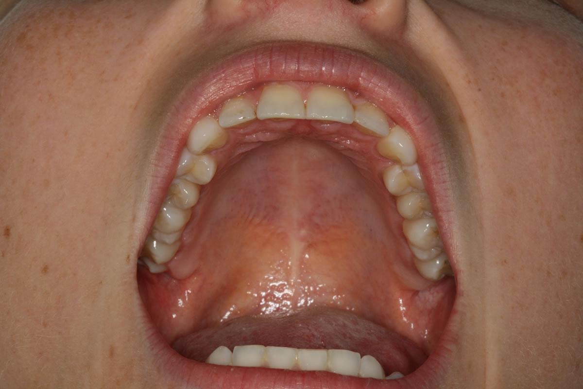 Mund sabbern bei Erwachsenen homöopathische Behandlungen