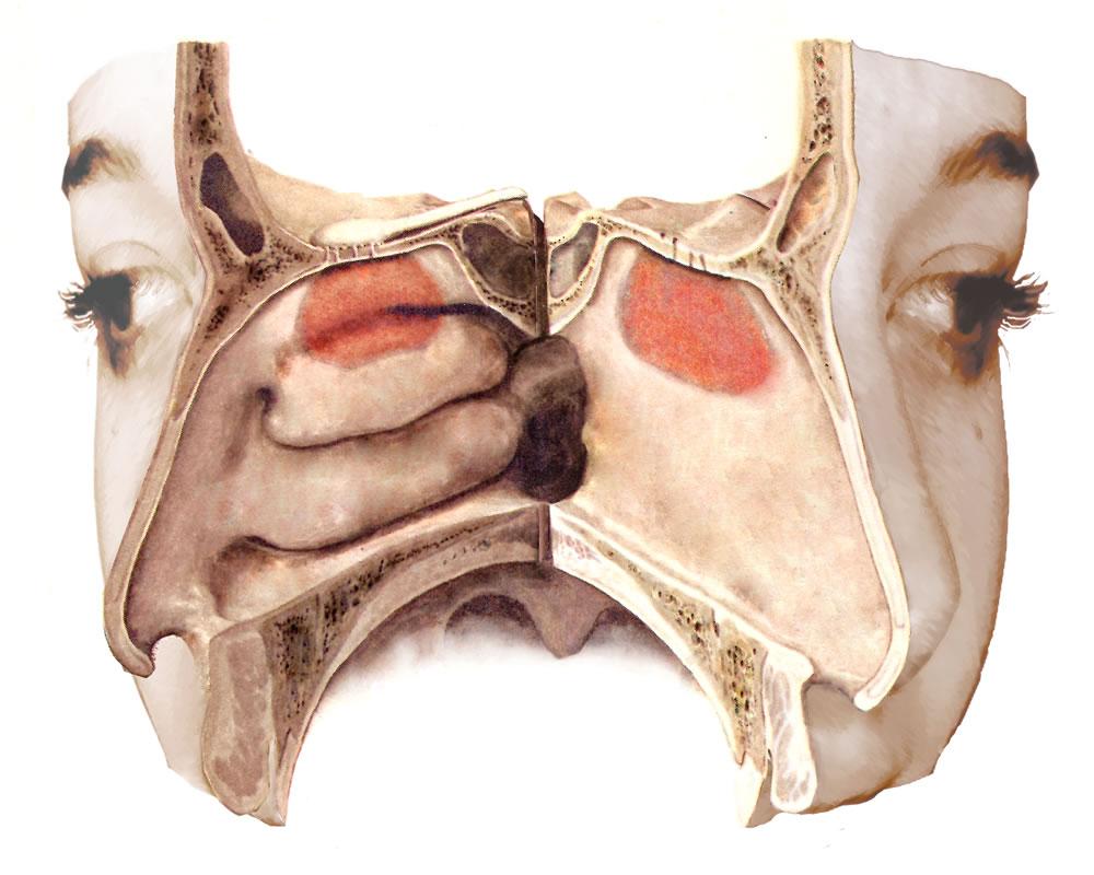 17 Regio nasalis