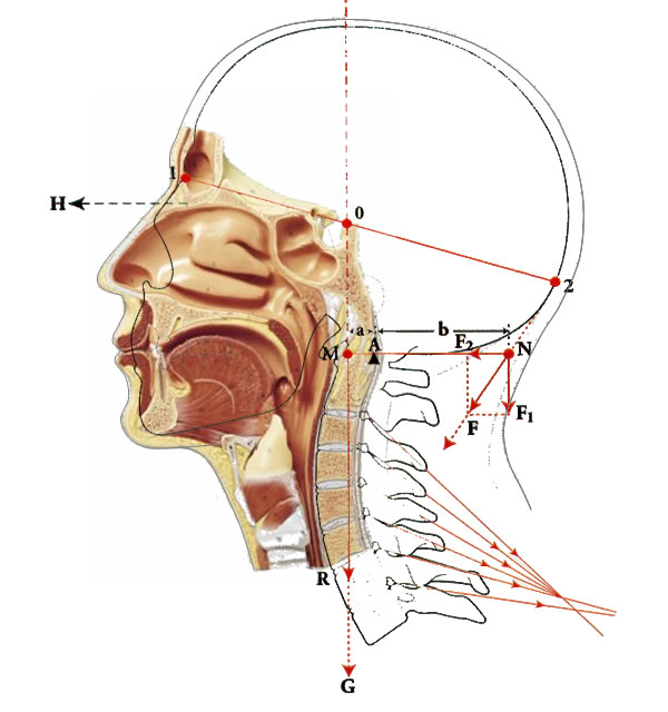 instabilitäten der halswirbelsäule